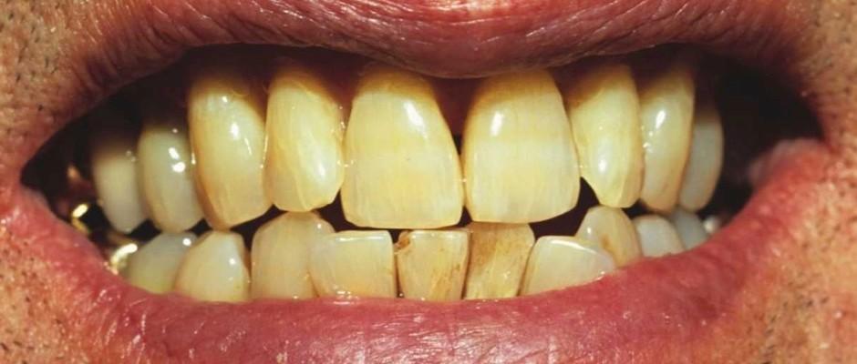 fogak és íny betegségei a dohányzástól